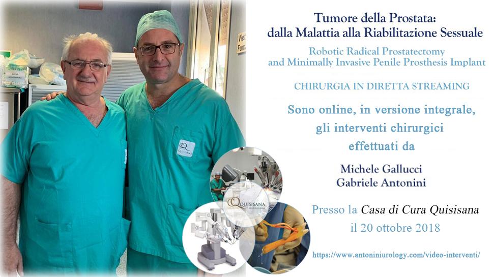 Antonini-Gallucci, l'Urologia Italiana diventa Hi-Tech