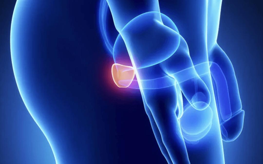Ruolo e coinvolgimento della dieta nel rischio e nella progressione del cancro alla prostata.